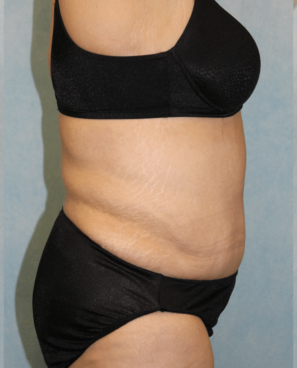 Abdominoplasty + Monsplasty