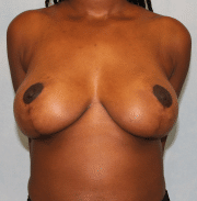 Breast Lift with Reduction